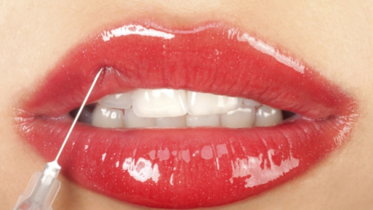 устни ботокс пластична хирургия