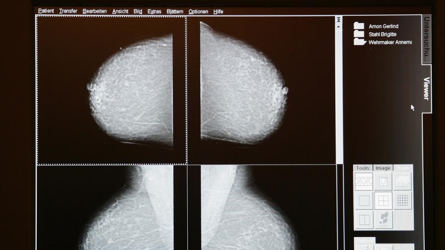 Доклад на САЩ: Ползите от мамографиите са надценени, а рисковете - подценени
