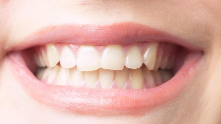 зъби усмивка дете