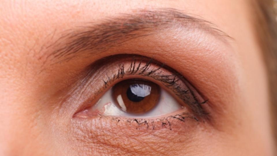 Ако имате жълто около очите...