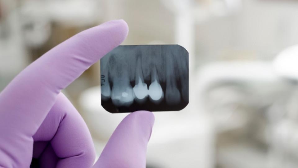 Вредни ли са зъбните рентгенови снимки