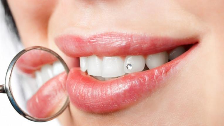 зъби декорация зъб зъболекар камък диамант мода стоматолог