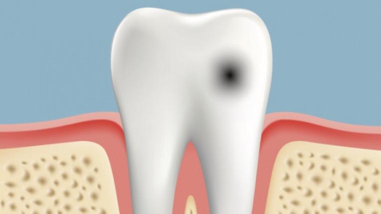 зъби зъболекар кариес