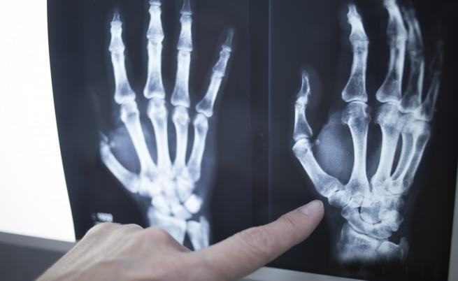 Хакери атакуват рентгени и медицинска апаратура