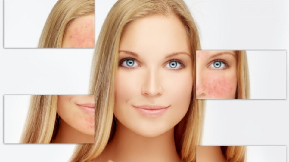 Kак да се грижим за чувствителната кожа