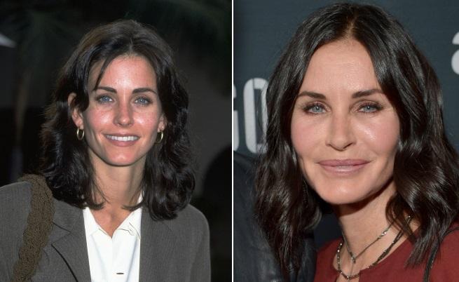 Вижте Кортни Кокс преди и след пластични операции (снимки)