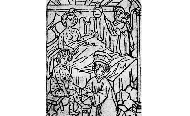 През XV в. лекари лекуват мъж и жена, болни от сифилис.