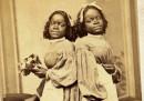 """Историята на """"Двуглавото момиче"""", родено в робство"""
