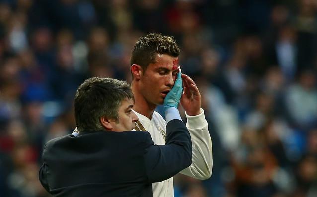Звездата на Реал Мадрид Кристиано Роналдо бе окървавен в мача