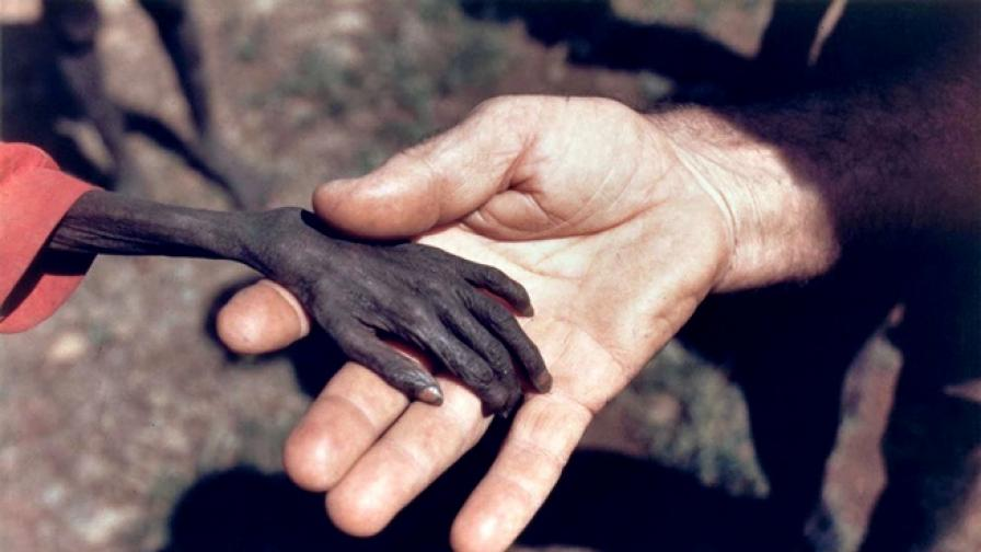 Една изстрадала детска ръка и срамът на фотографа