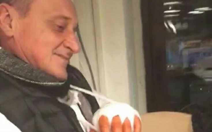 Делио Роси си счупи ръката?