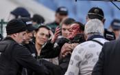 Заловиха виновника за ранената полицайка в дербито