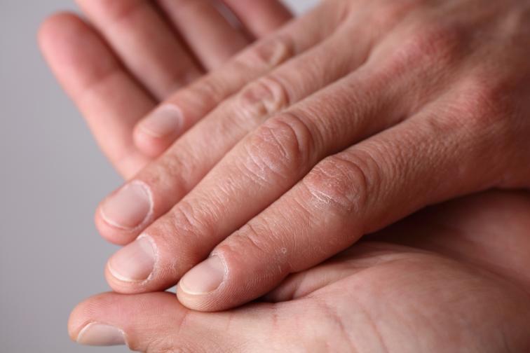 тяло сигнали остаряване