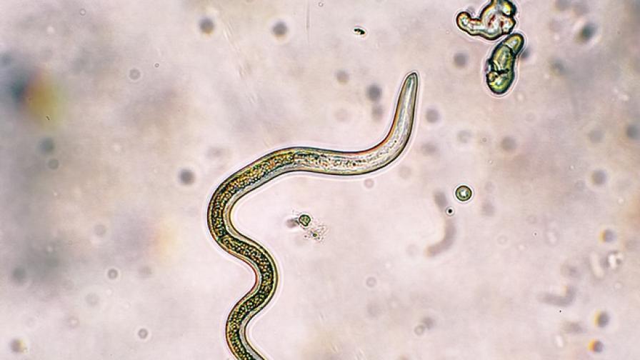 микроскопични червеи