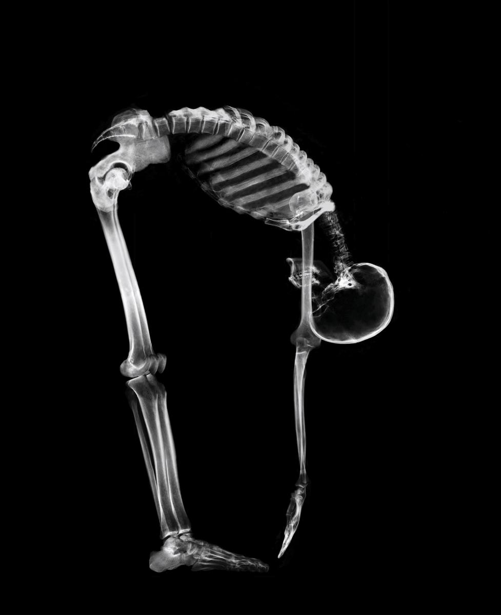 Прекалено честата употреба на газирани напитки пречи на тялото да усвоява калций, което рефлектира върху костите.
