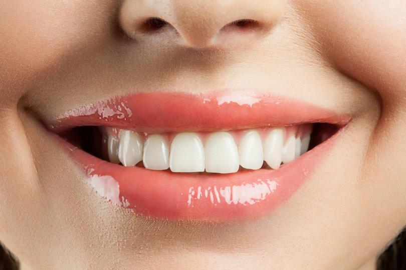 <p><strong>Бели сенки за по-светли зъби</strong></p>  <p>Този трик може би е най-необичайният от всички, а за него главният гримьор на &bdquo;Оскар&ldquo; церемониите споделя: &bdquo;Това избелва зъбите, а кремообразните сенки не се забелязват. Не е дългоустойчиво, но стига за важните снимки в близък план на червения килим.&ldquo;</p>