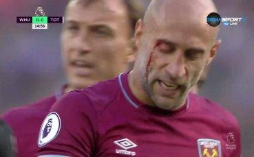 Главата на Сабалета не издържа след удар с Лукас Моура