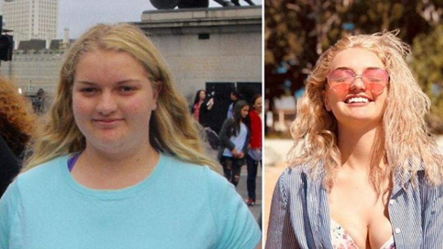 <p>Младо момиче свали 63 кг за една година</p>