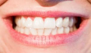 <p>Здравословните храни, които вредят на зъбите</p>