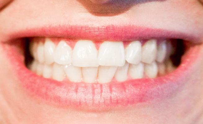 Здравословните храни, които вредят на зъбите