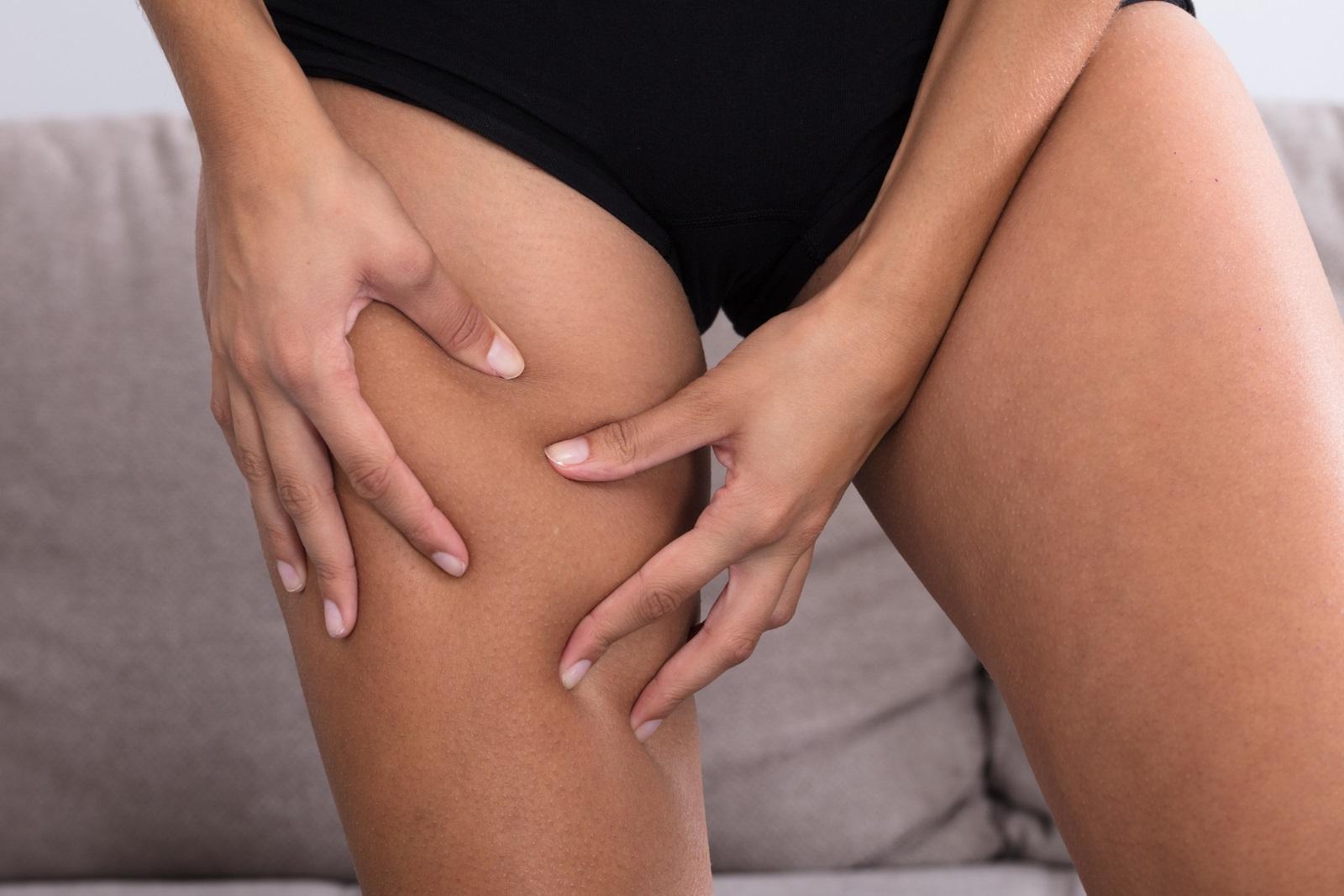 По-ниските нива на колагена причиняват отпускане на кожата и поява на целулит.
