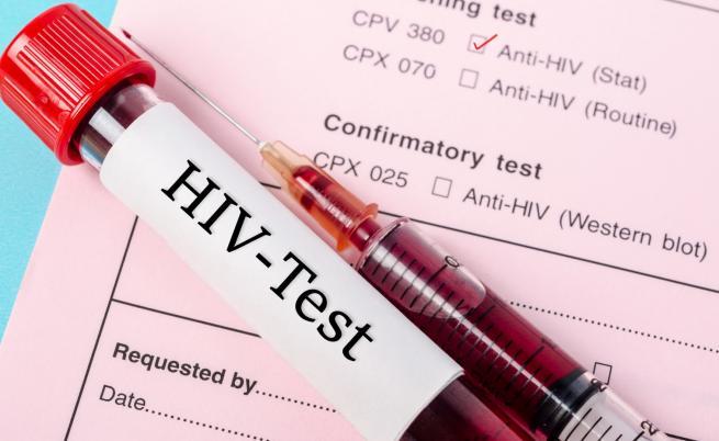 Пробив в лечението срещу вируса на СПИН