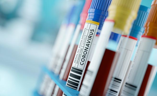 1618 заразени с COVID-19 у нас, 176 от тях са медици