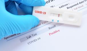 165 нови случаи на Sars-CoV-2, общият брой надхвърли 5 000
