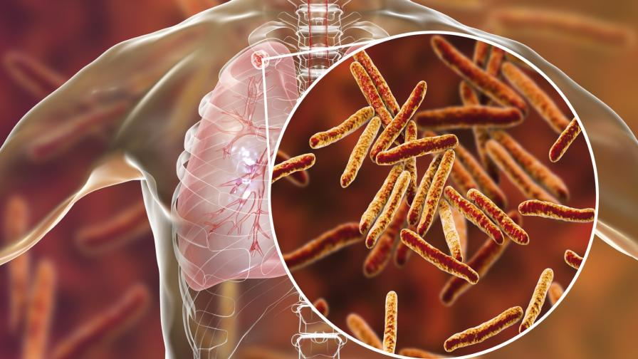 <p>Как лаборатория откри туберкулоза при здрава жена</p>