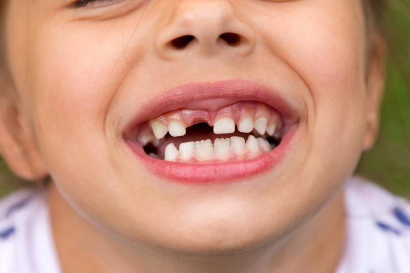 <p><strong>Ако в съня ви зъбите ви изпадат:</strong></p>  <p>Сънищата, в който губите зъбите са със състоянието на самочувствието ви и с общуването. Сънят може да подчертава някакви затруднения в общуването с някого или в изразяването на себе си по някакъв начин. Това може да е свързано и с чувство на безсилие, тъй като зъбите се използват за дъвчене, разкъсване и хранене. Възможно е да ви липсва увереност или да се нуждаете от повече уединение.</p>