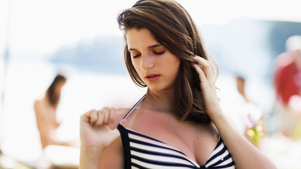 Какво да правим при слънчево изгаряне