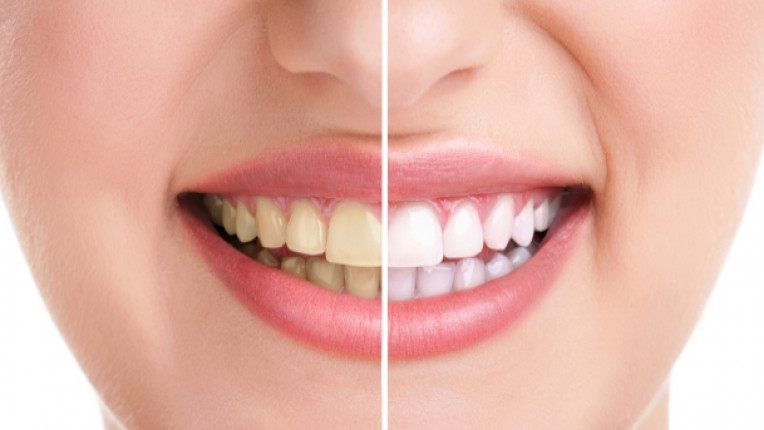 петна по зъбите налепи зъболекар специалист пломба кариес амалгама плака