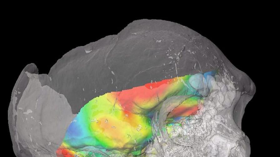 """Учени """"отгледаха"""" миниатюрни мозъци в лаборатория"""