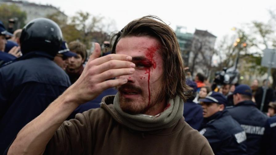 Една от снимките на ранения Александър Попов, които обиколиха световните медии